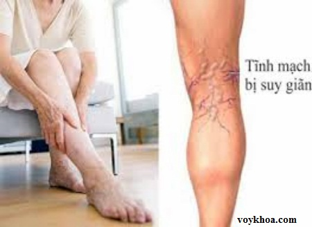 Chân nổi gân xanh có phải là bệnh suy giãn tĩnh mạch