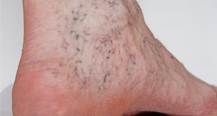 Suy tĩnh mạch chân nguy hiểm như thế nào?