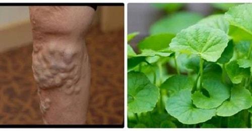 Chữa suy giãn tĩnh mạch chân bằng rau má ít người biết đến